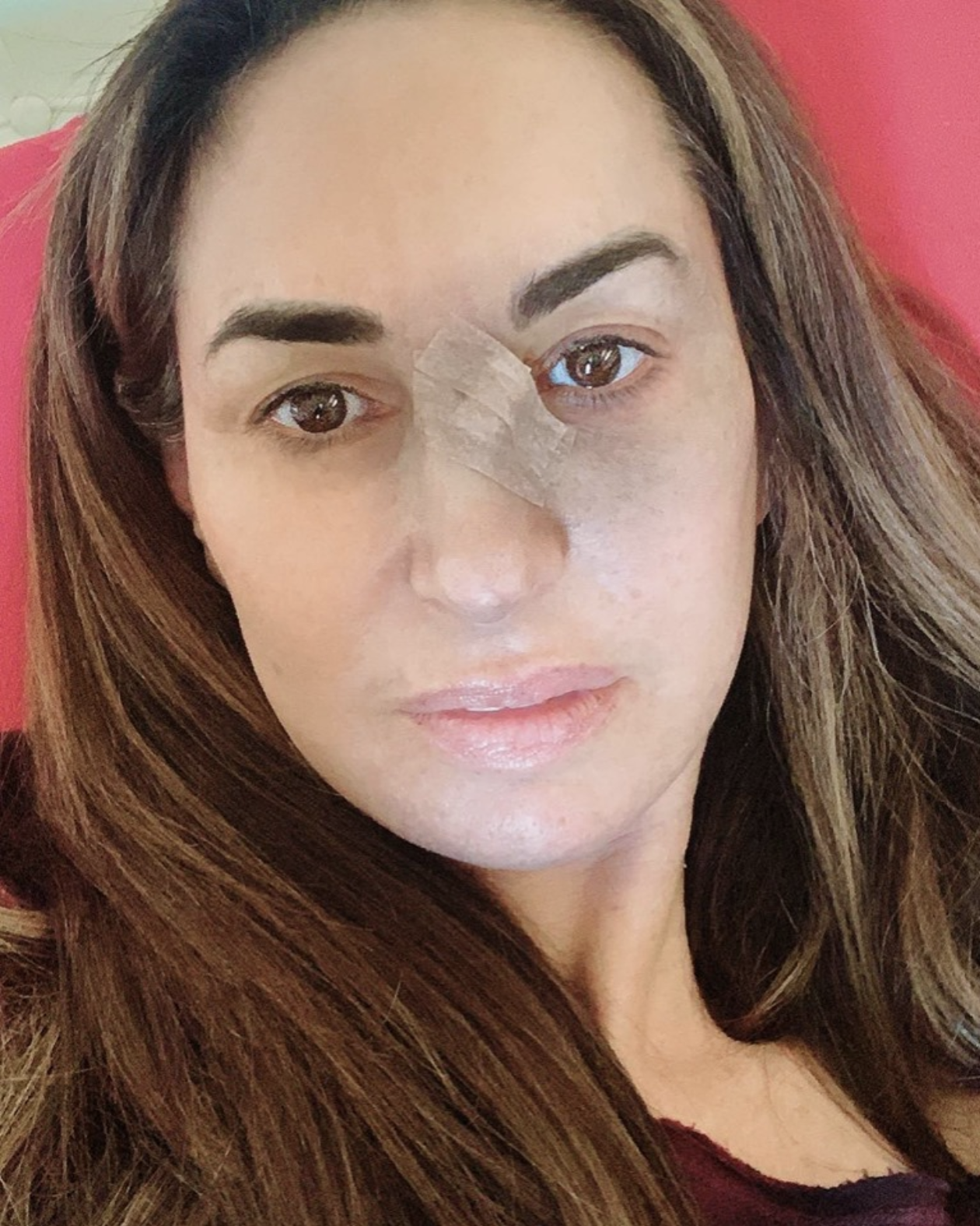 Basal Cell Carcinoma and Mohs Surgery